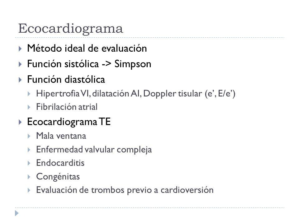 Ecocardiograma Método ideal de evaluación