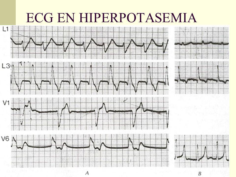 ECG EN HIPERPOTASEMIA