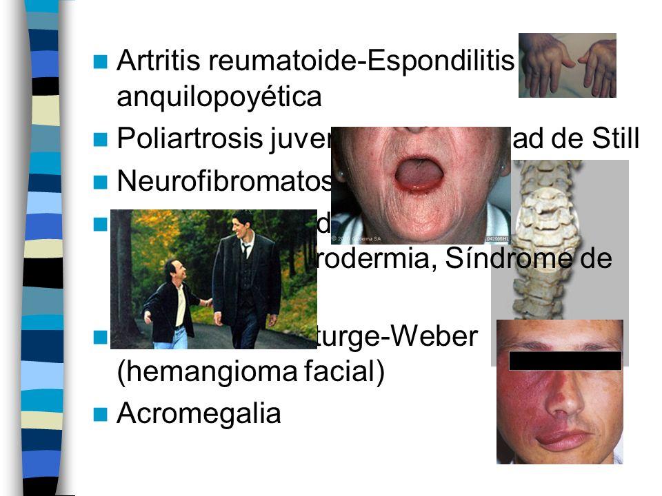 Artritis reumatoide-Espondilitis anquilopoyética