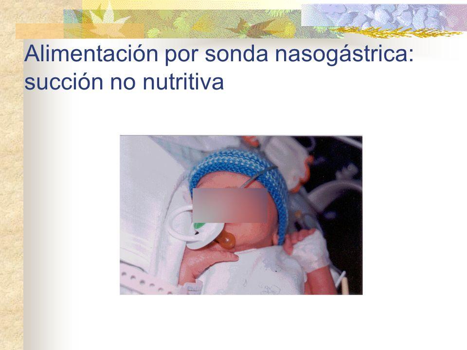 Alimentación por sonda nasogástrica: succión no nutritiva