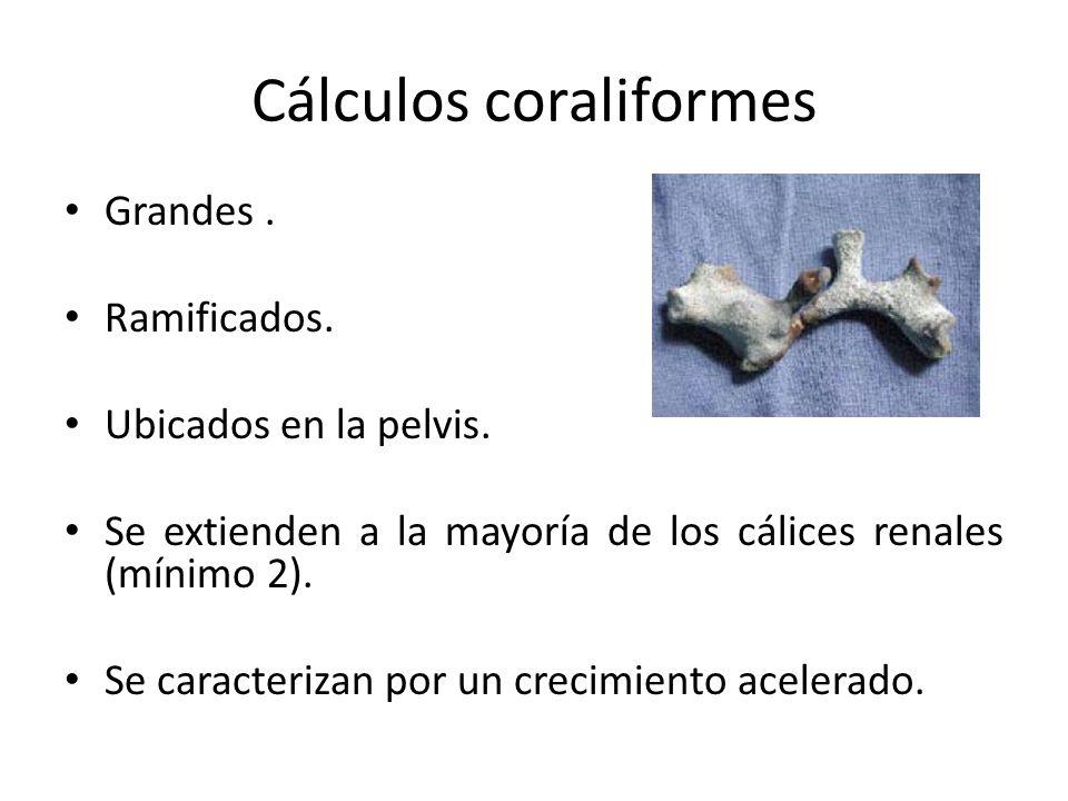 Cálculos coraliformes