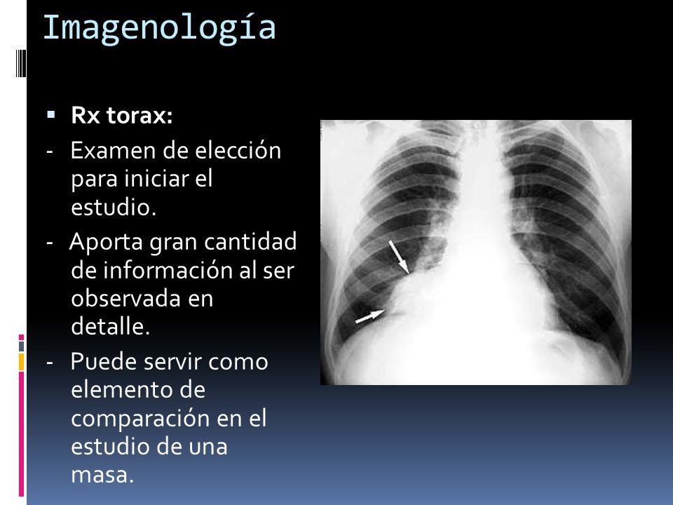 Imagenología Rx torax: - Examen de elección para iniciar el estudio.