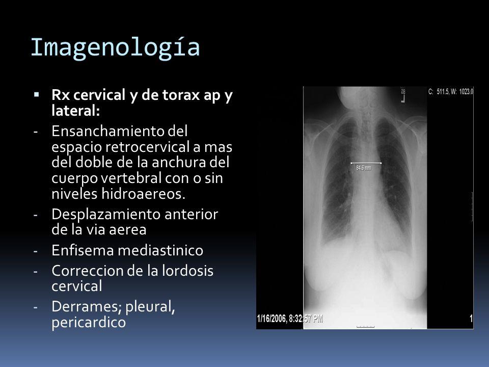 Imagenología Rx cervical y de torax ap y lateral: