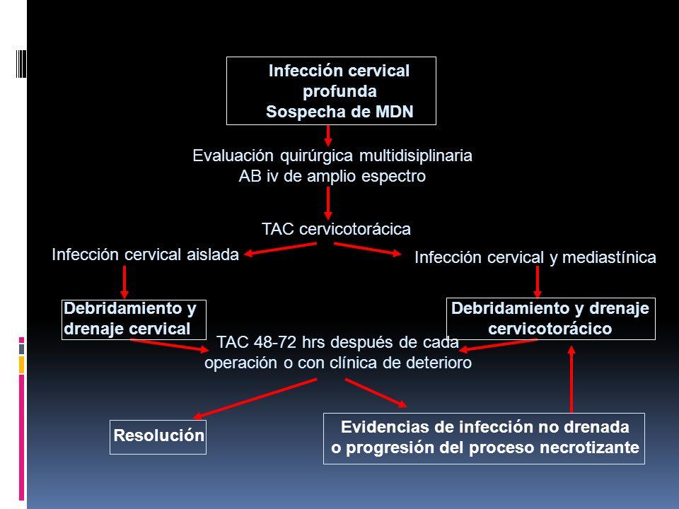 Infección cervical profunda Sospecha de MDN