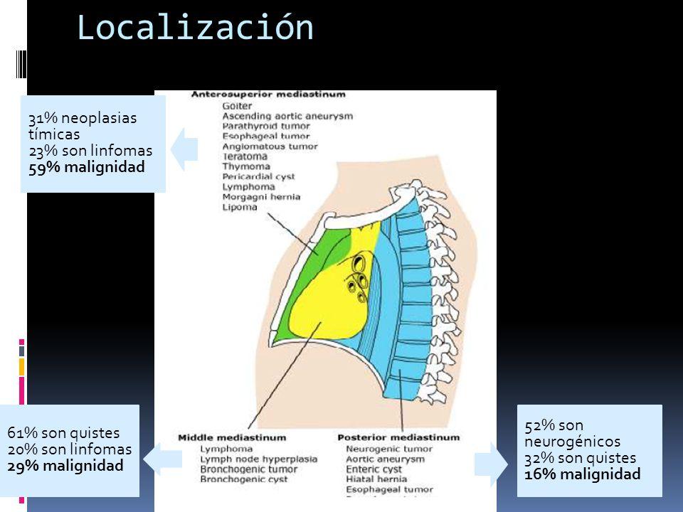 Localización 31% neoplasias tímicas 23% son linfomas 59% malignidad