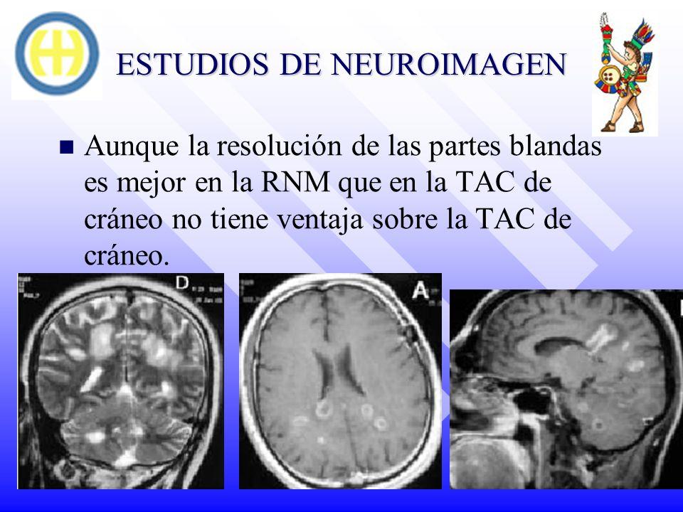 ESTUDIOS DE NEUROIMAGEN