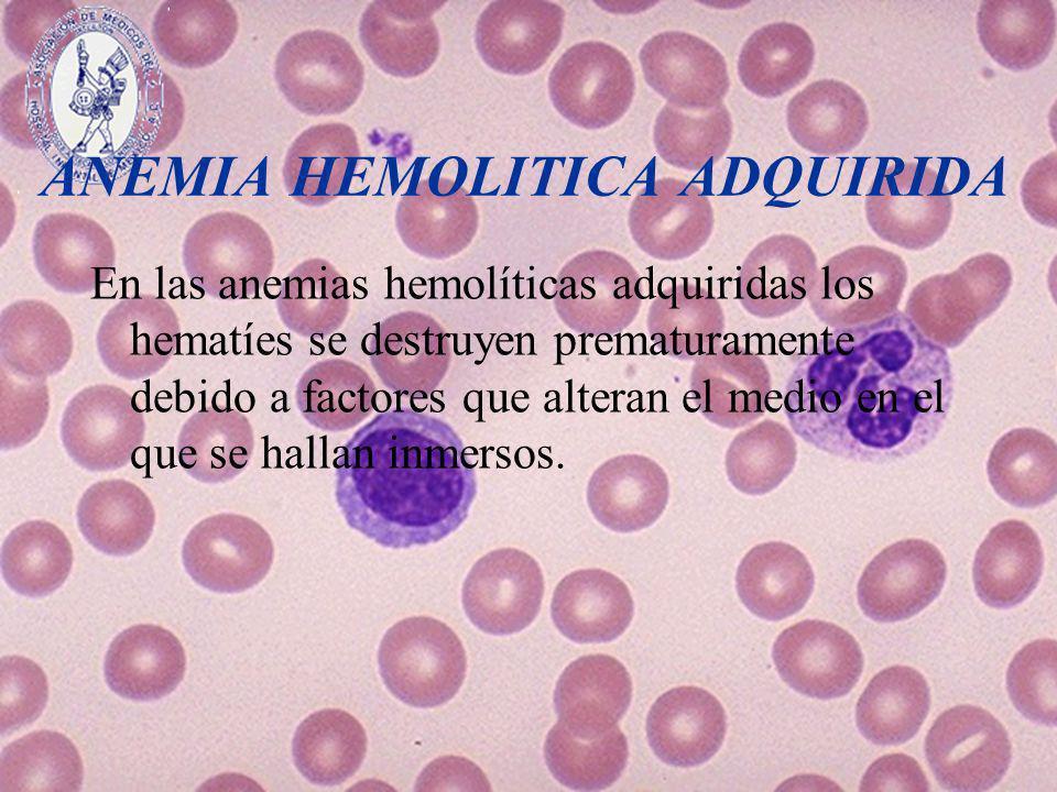 ANEMIA HEMOLITICA ADQUIRIDA