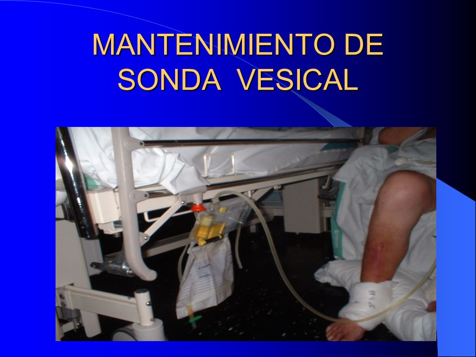 MANTENIMIENTO DE SONDA VESICAL