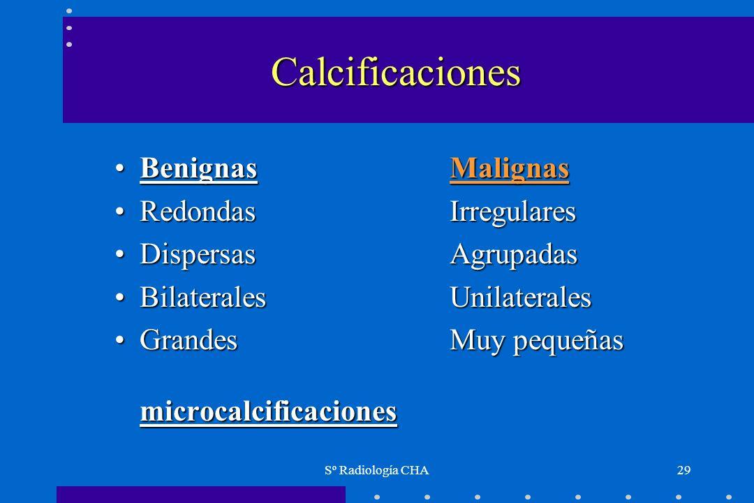 Calcificaciones Benignas Malignas Redondas Irregulares