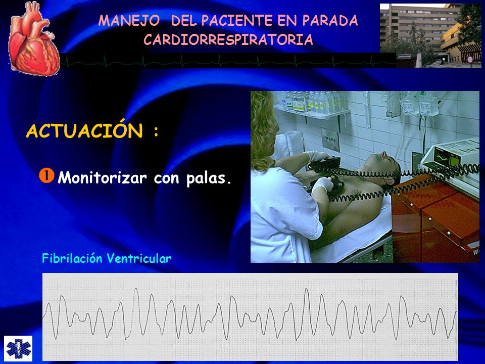 ACTUACIÓN : Monitorizar con palas. Fibrilación Ventricular