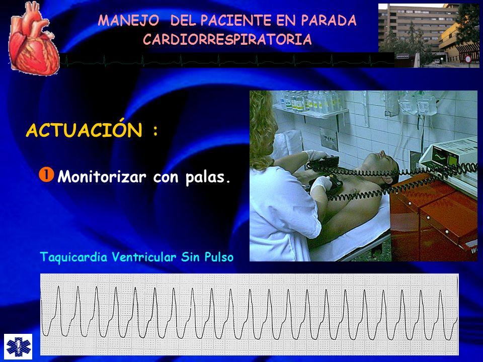 ACTUACIÓN : Monitorizar con palas. Taquicardia Ventricular Sin Pulso