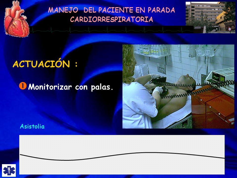 ACTUACIÓN : Monitorizar con palas. Asistolia
