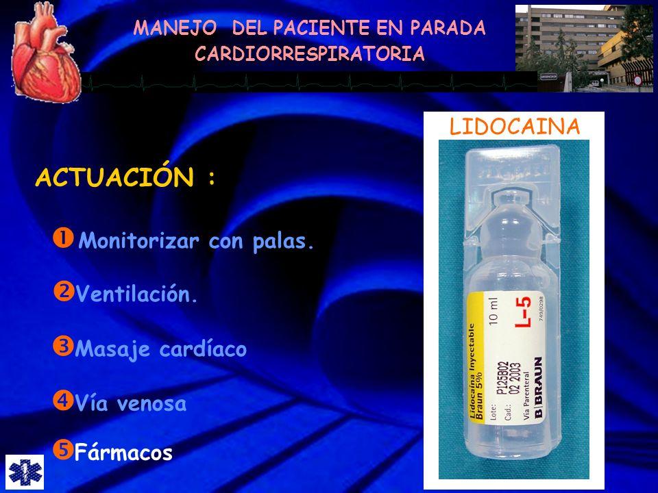 ACTUACIÓN : LIDOCAINA Monitorizar con palas. Ventilación.