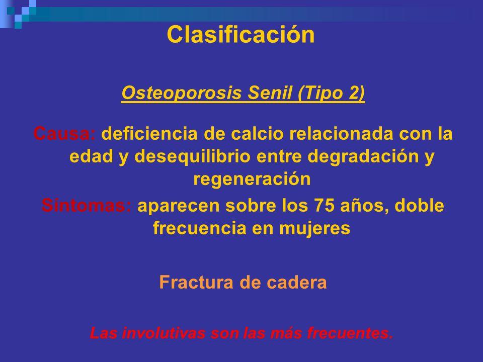Clasificación Osteoporosis Senil (Tipo 2)