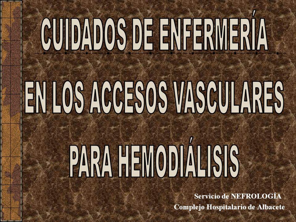 Servicio de NEFROLOGÍA Complejo Hospitalario de Albacete