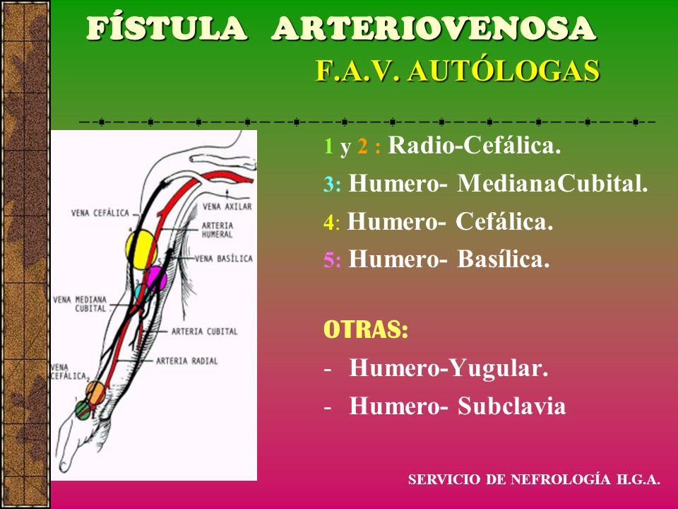 FÍSTULA ARTERIOVENOSA F.A.V. AUTÓLOGAS