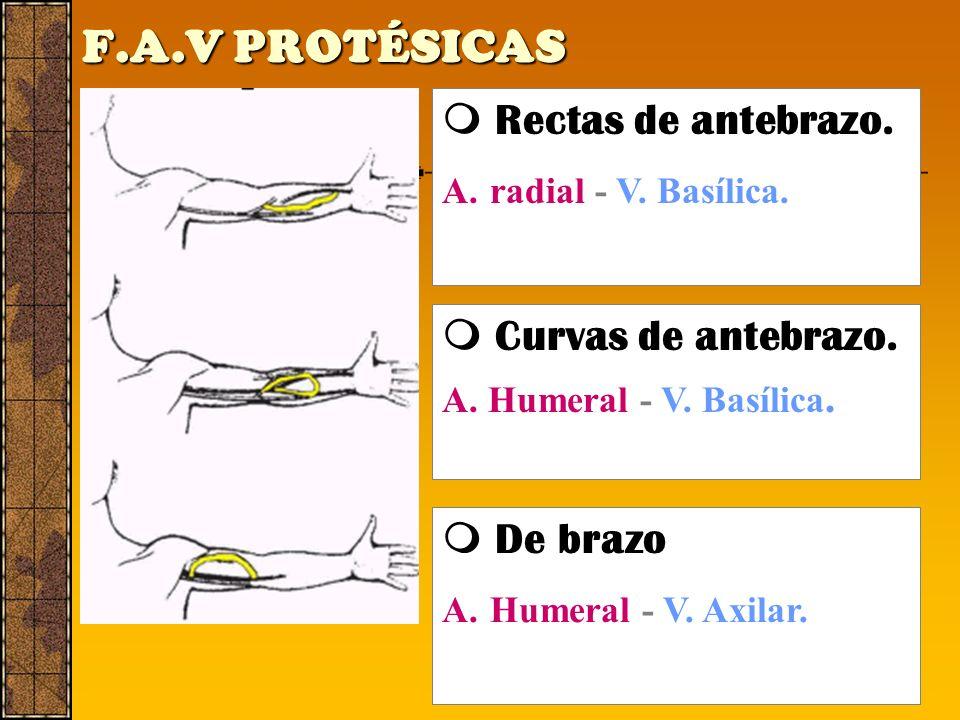 F.A.V PROTÉSICAS  Rectas de antebrazo.  Curvas de antebrazo.