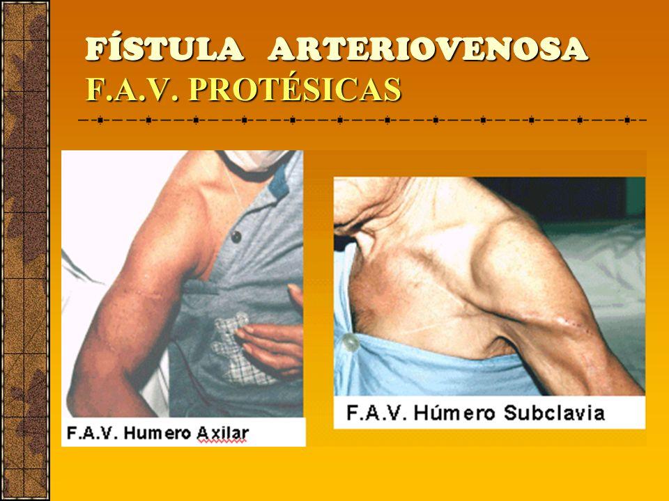 FÍSTULA ARTERIOVENOSA F.A.V. PROTÉSICAS
