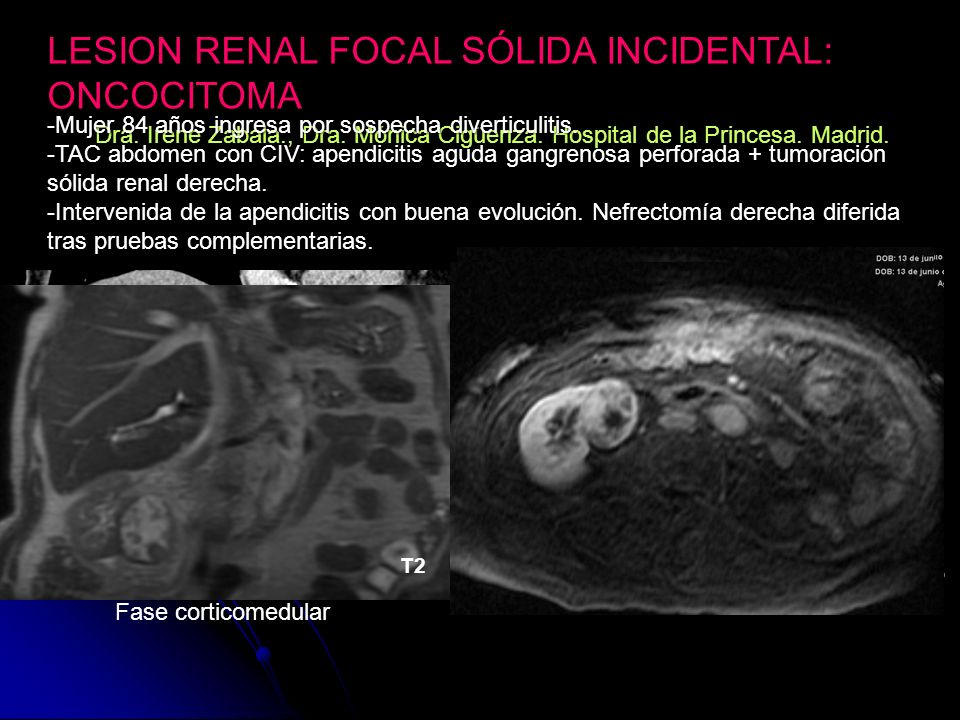 LESION RENAL FOCAL SÓLIDA INCIDENTAL: ONCOCITOMA