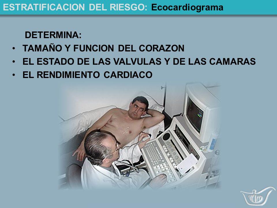 ESTRATIFICACION DEL RIESGO: Ecocardiograma