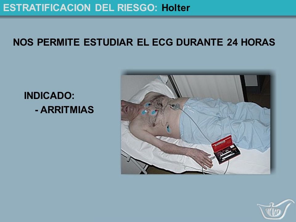 ESTRATIFICACION DEL RIESGO: Holter