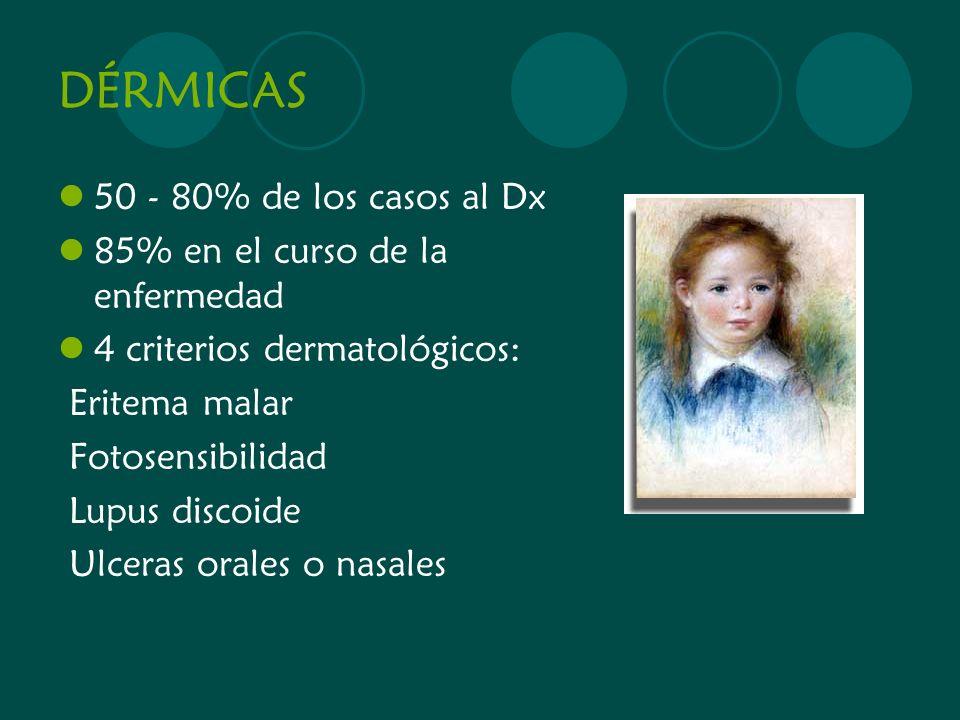 DÉRMICAS 50 - 80% de los casos al Dx 85% en el curso de la enfermedad