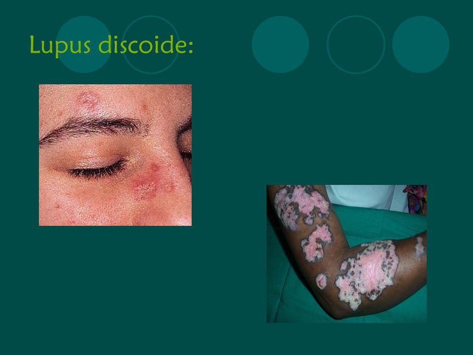 Lupus discoide: