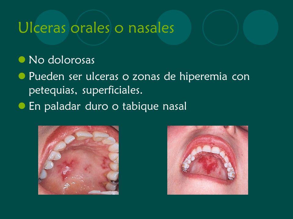 Ulceras orales o nasales