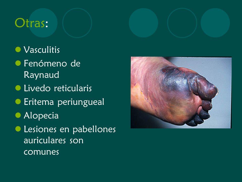 Otras: Vasculitis Fenómeno de Raynaud Livedo reticularis