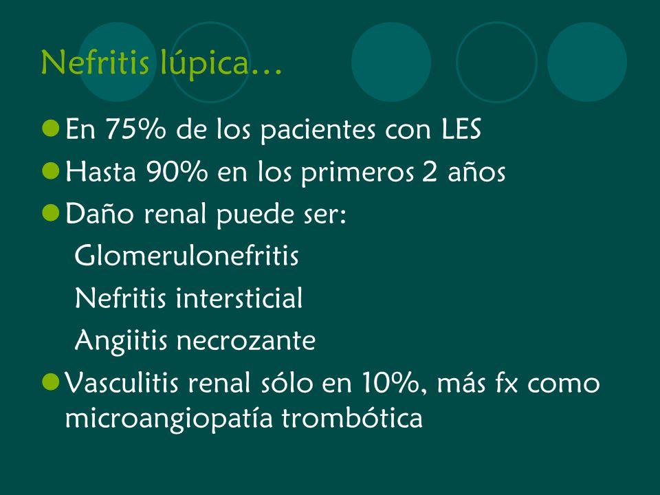 Nefritis lúpica… En 75% de los pacientes con LES