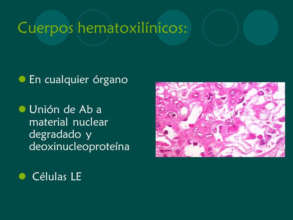 Cuerpos hematoxilínicos:
