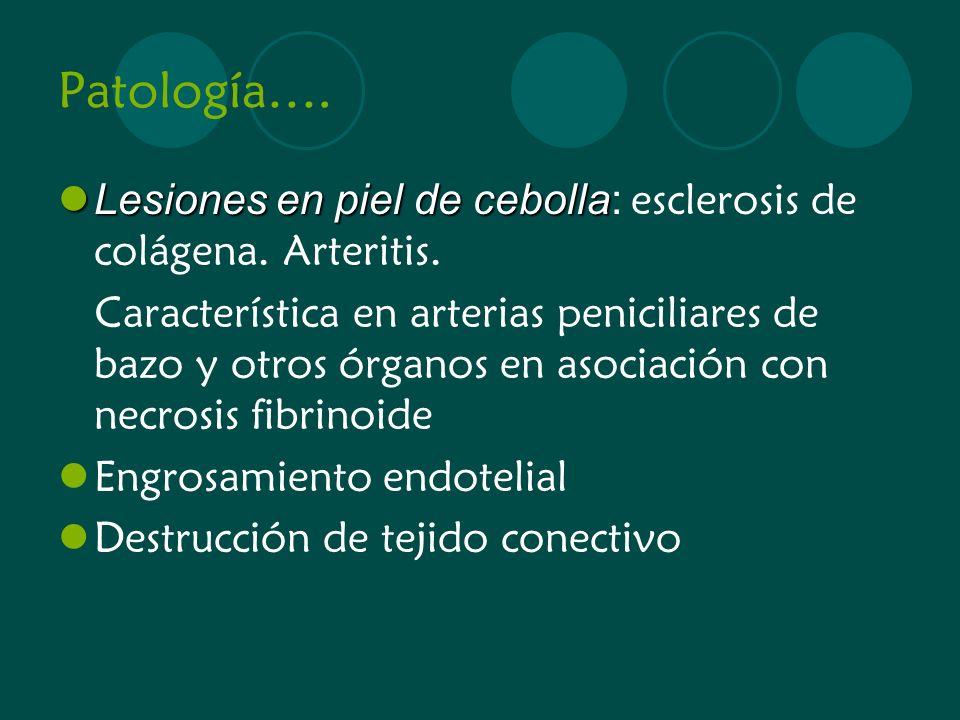 Patología…. Lesiones en piel de cebolla: esclerosis de colágena. Arteritis.