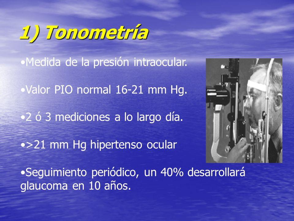 1) Tonometría Medida de la presión intraocular.