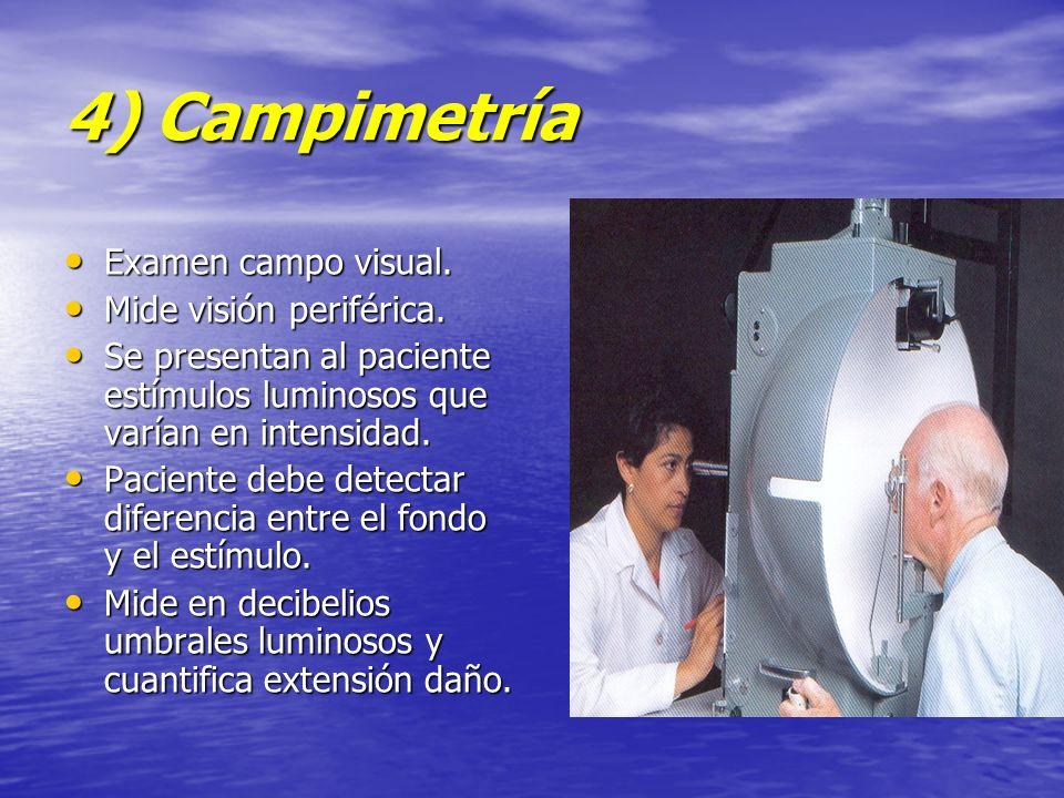 4) Campimetría Examen campo visual. Mide visión periférica.