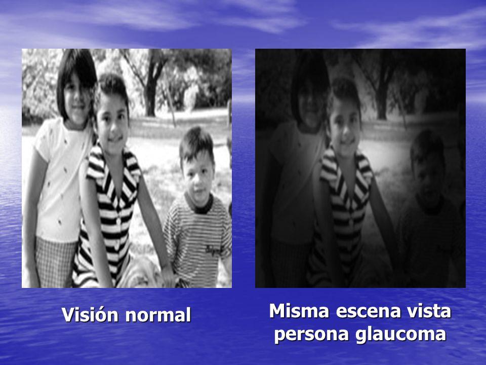 Misma escena vista persona glaucoma Visión normal