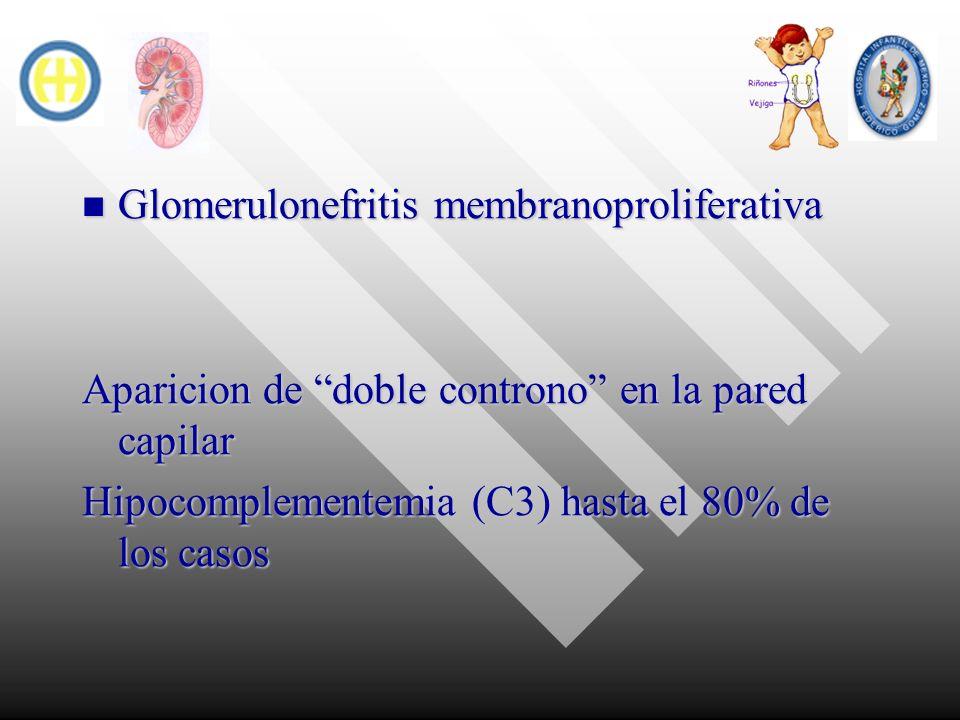 Glomerulonefritis membranoproliferativa