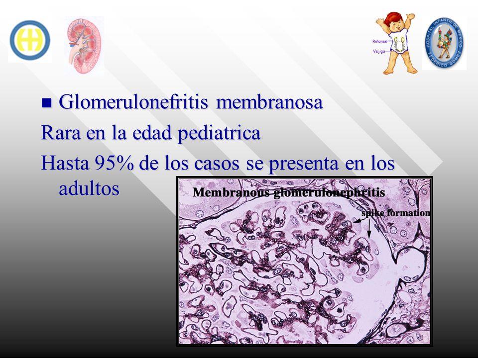 Glomerulonefritis membranosa