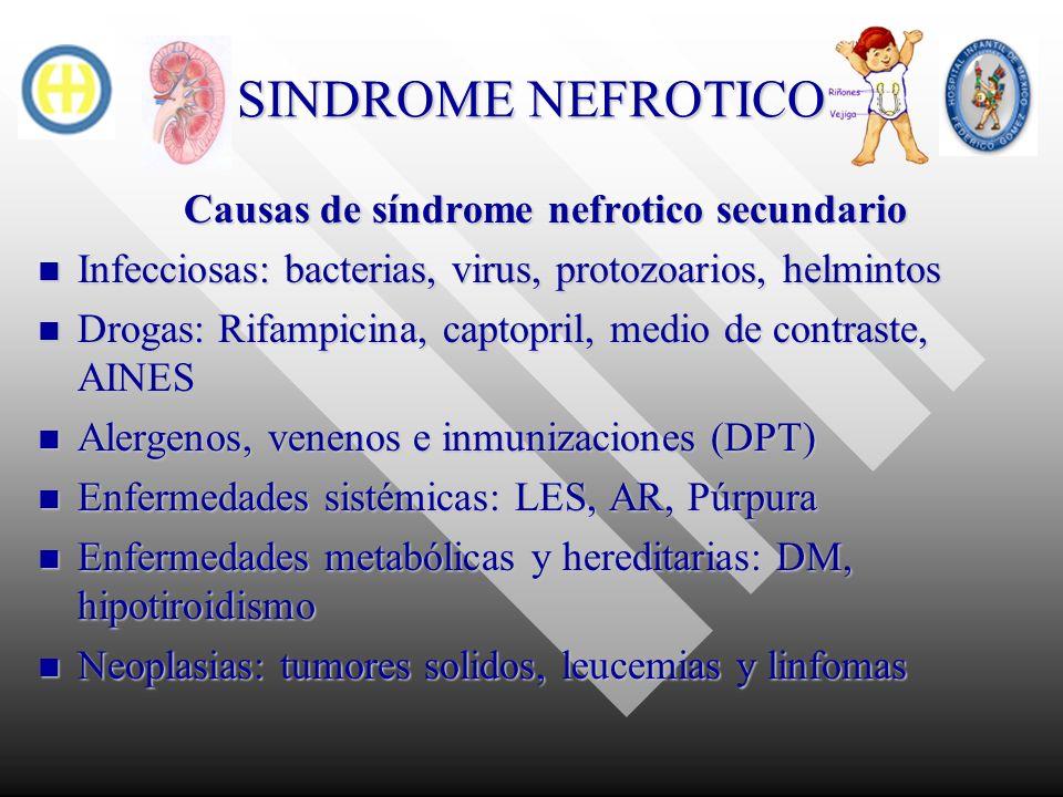 Causas de síndrome nefrotico secundario