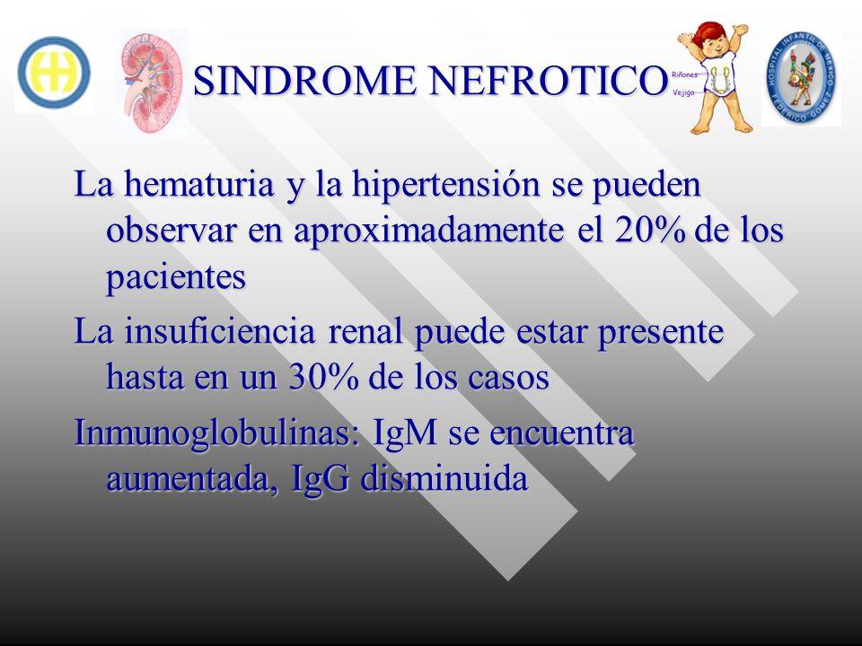 SINDROME NEFROTICO La hematuria y la hipertensión se pueden observar en aproximadamente el 20% de los pacientes.