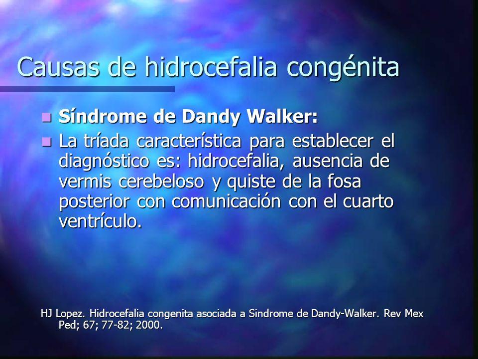 Causas de hidrocefalia congénita