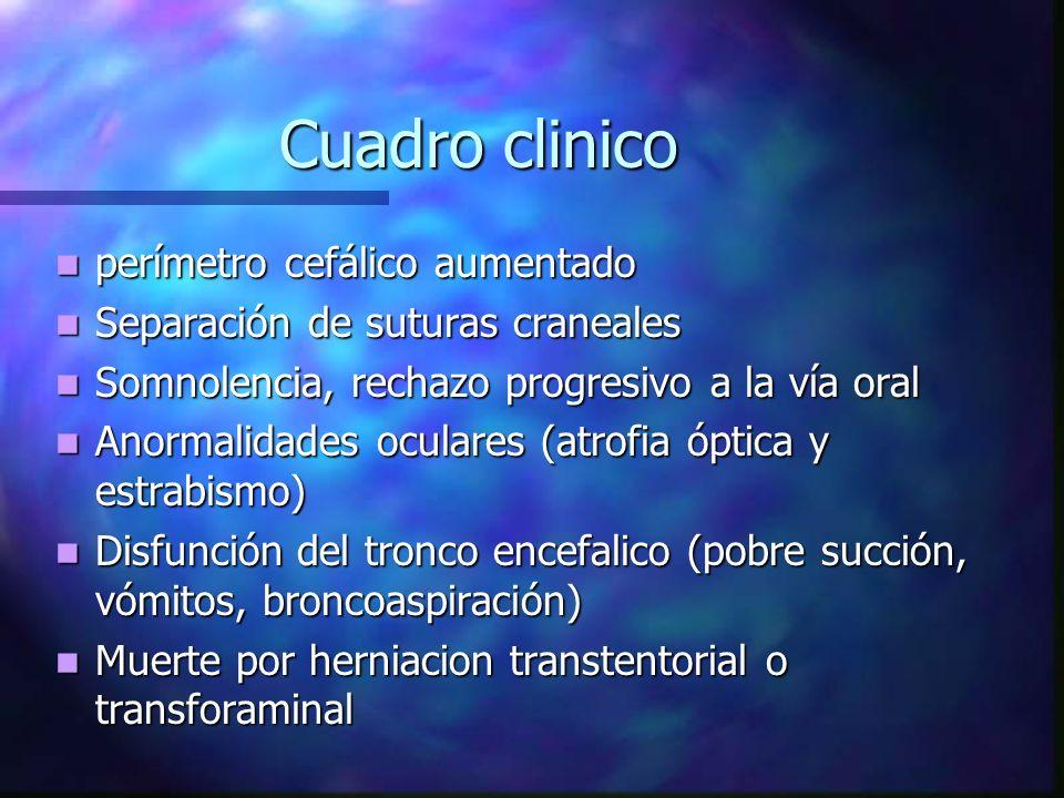 Cuadro clinico perímetro cefálico aumentado