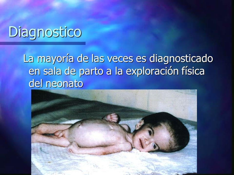 Diagnostico La mayoría de las veces es diagnosticado en sala de parto a la exploración física del neonato.