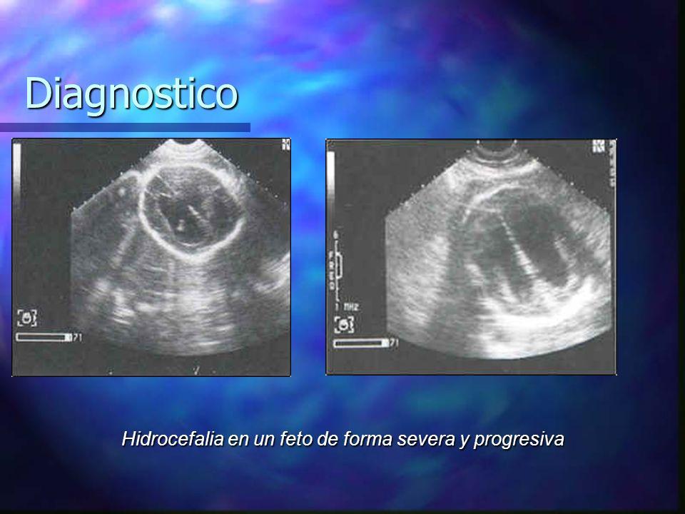 Hidrocefalia en un feto de forma severa y progresiva