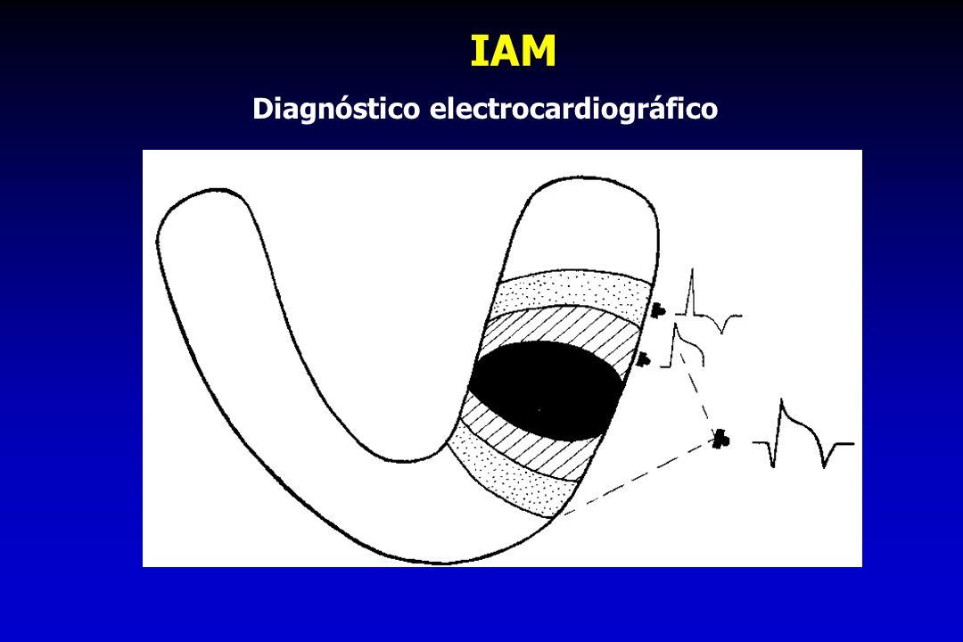 Diagnóstico electrocardiográfico