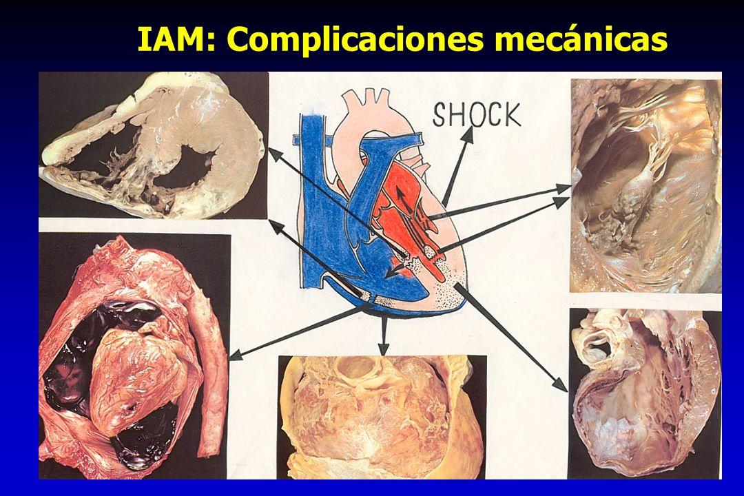 IAM: Complicaciones mecánicas