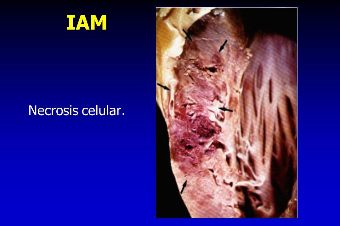 IAM Necrosis celular.