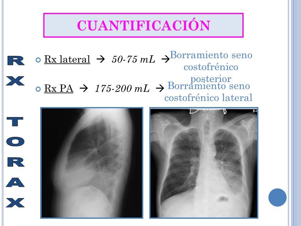RX TORAX CUANTIFICACIÓN Borramiento seno costofrénico posterior