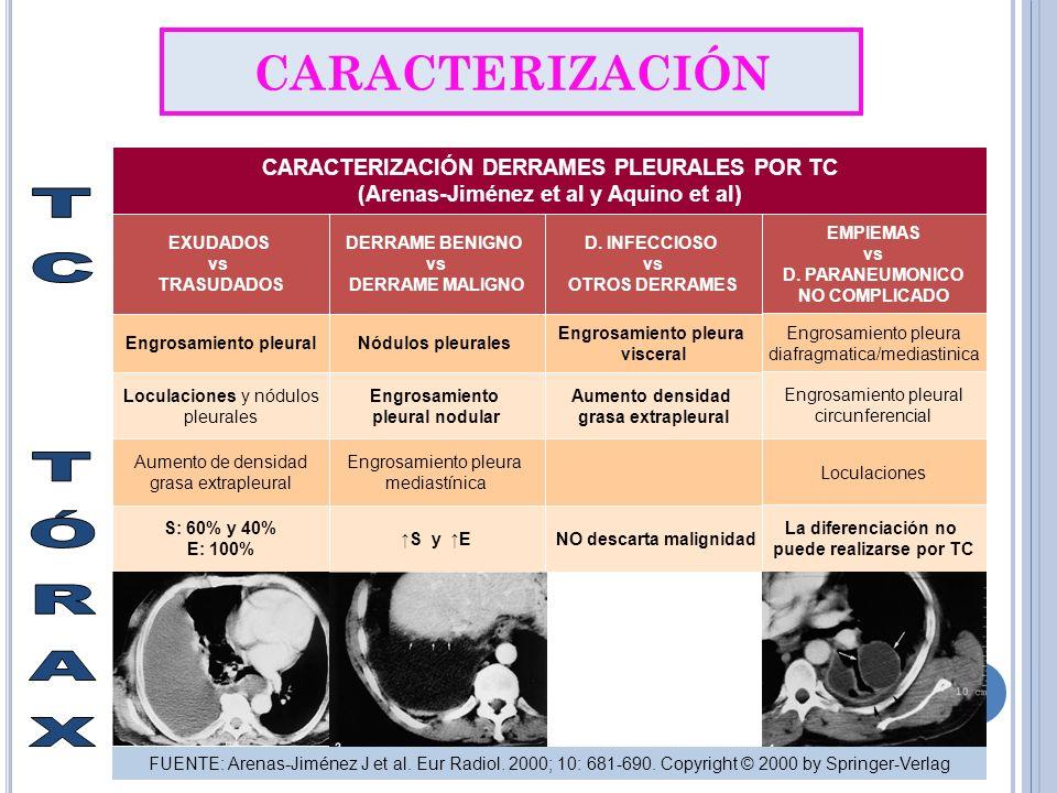 TC TÓRAX CARACTERIZACIÓN CARACTERIZACIÓN DERRAMES PLEURALES POR TC