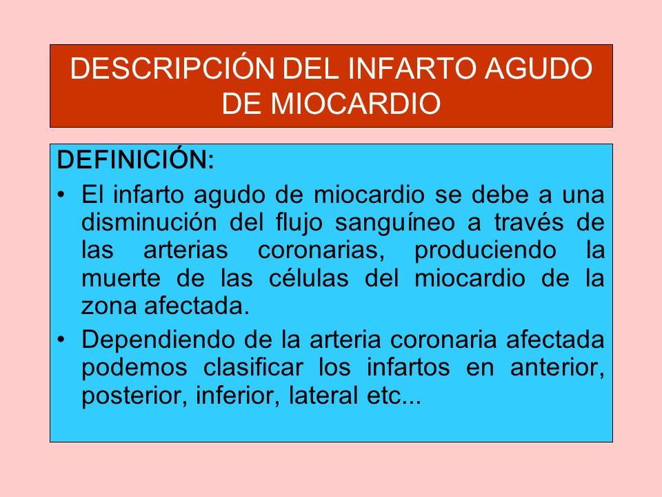DESCRIPCIÓN DEL INFARTO AGUDO DE MIOCARDIO