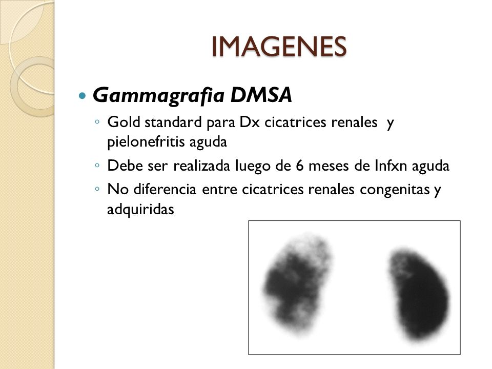 IMAGENES Gammagrafia DMSA